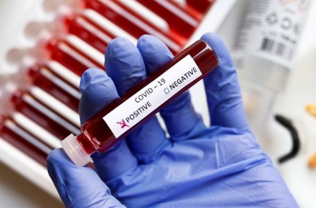 Fake blood is seen in test tubes labelled with the coronavirus (COVID-19) in this illustration taken March 17, 2020. REUTERS/Dado Ruvic/Illustration